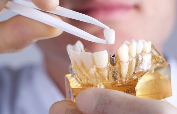 Создан зубной имплантат, вырабатывающий собственное электричество для борьбы с бактериями